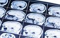 Cellules gliales : l'autre moitié méconnue de notre cerveau