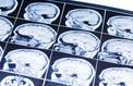 Les nanotechnologies : la nouvelle arme contre le cancer du cerveau