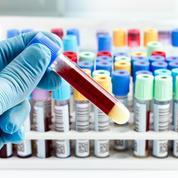 Un test sanguin pour dépister plus tôt le cancer du pancréas