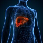 Cirrhose: quand l'alcool détruit le foie