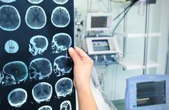 Une molécule prometteuse pour le traitement d'Alzheimer