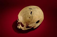 Les hommes préhistoriques déjà très férus de médecine