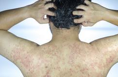 Psoriasis: certains traitements peuvent presque faire oublier la maladie