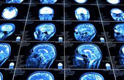 Mieux comprendre cet incroyable organe qu'est le cerveau humain