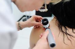 Cancer de la peau: des dermatologues proposent un dépistage gratuit
