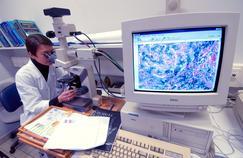 Des médecins plaident pour un dépistage de la cirrhose du foie