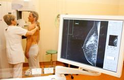 Trois idées reçues sur le cancer du sein
