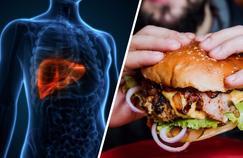 Stéatose hépatique: quand le gras rend malade le foie