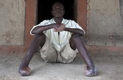 Lèpre: pourquoi ne voit-on pas la fin de cette maladie?