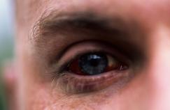 Les blessures à l'œil sont souvent plus graves qu'on ne le pense