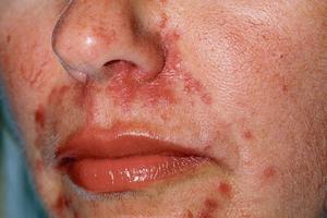 La rosacée est une maladie chronique dont les symptômes réapparaissent sous l'effet des éléments qui la provoquent.