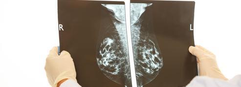 Cancer du sein : informer avant de dépister