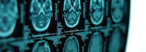 Un cerveau abîmé annoncerait une mort prématurée