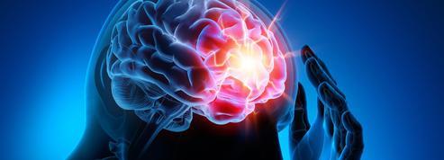 Peut-on voir la douleur dans le cerveau?