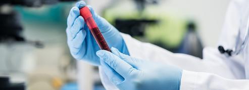 L'hématidrose, cette étrange maladie où le corps transpire du sang