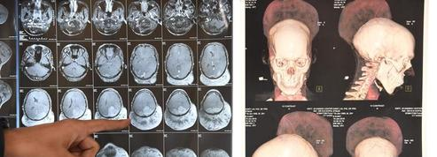 Un homme atteint d'une tumeur au cerveau de 1,8 kg a été opéré en Inde