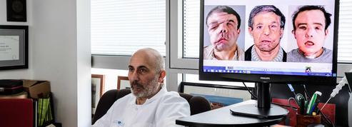 Double greffe de visage: «il y aura toujours un risque de rejet»
