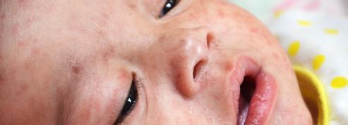 L'Europe enregistre un nombre record de cas de rougeole