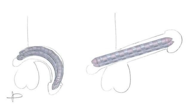 Schéma de la prothèse de pénis à mémoire de forme. Au repos (à gauche) , et en érection (à droite) (Le Figaro).