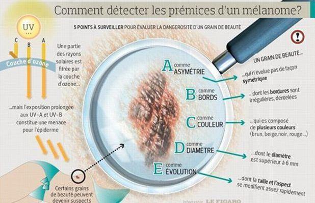 La méthode ABCDE pour surveiller les signes suspects de la peau.
