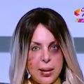 En Égypte, une présentatrice télé apparaît le visage tuméfié