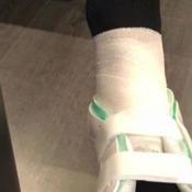 Neymar poste une photo de sa cheville et entretient le doute