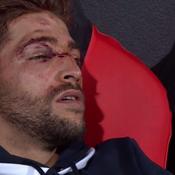 Racing : l'impressionnante blessure à la tête de Teddy Iribaren