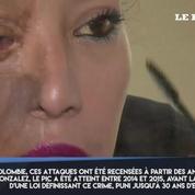 En Colombie, un chirurgien soigne les femmes défigurées par l'acide