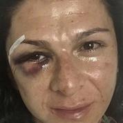 Mexique : une médaillée olympique raconte sa violente agression sur Twitter