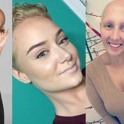 #BaldAndBadChallenge : pourquoi ces filles posent-elles le crâne rasé sur Twitter ?