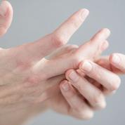 Peut-on prévenir l'arthrose et comment?
