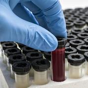 La soie pour conserver intacts les échantillons sanguins