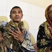 Opération réussie pour «l'homme-arbre» du Bangladesh