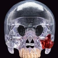 L'impression 3D est de plus en plus utilisée en chirurgie réparatrice. Crédit: Mathieu Walter