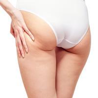 La cellulite est-elle inévitable?