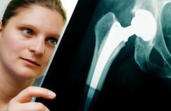 Les vices bien cachés d'une prothèse de hanche