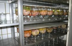 La méthode autrichienne produit des cadavres parfaits