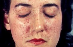La complexité du lupus cutané