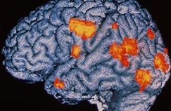 Schizophrénie : les prémices décelées par l'imagerie
