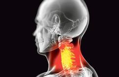 Quelles solutions pour l'arthrose cervicale ?