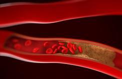 Mieux surveiller les artères grâce à l'imagerie médicale