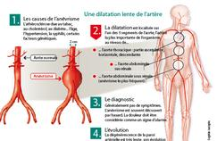 L'enjeu du dépistage de l'anévrisme de l'aorte