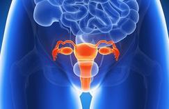 Le cancer de l'utérus ne doit pas être négligé