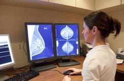 Cancer du sein : «Il était temps de revoir le dépistage»