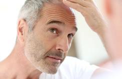 Prostate: le cancer plus agressif chez certains chauves