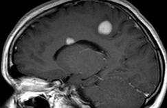 Sclérose en plaques: pourquoi la recherche va décoller