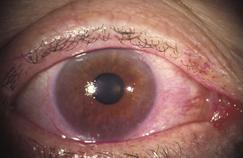 Syndromes secs : «Ma maladie me prend 70% de mon temps»