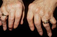 Polyarthrite rhumatoïde: traiter vite est essentiel