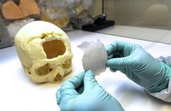 La céramique fait d'excellentes prothèses crâniennes