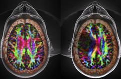 De l'électricité contre un cancer du cerveau